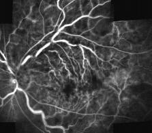 Fluorangiografia occlusione venosa di branca
