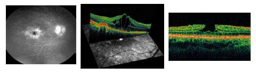 Fluorangiografia oct edema maculare cistoide