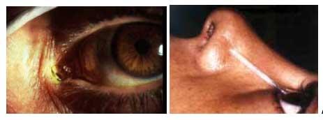 Intervento per ostruzioni delle vie lacrimali