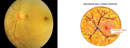 Occlusione arteriosa retinica