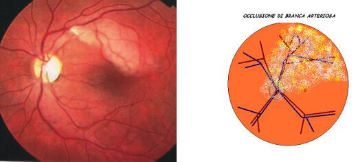 Occlusione branca arteriosa retina