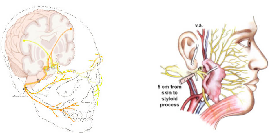Paralisi settimo nervo cranico