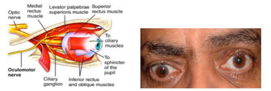 Paralisi del terzo nervo cranico