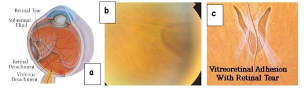 Rotture della retina