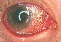 Occhio rosso tra i primi sintomi della congiuntivite