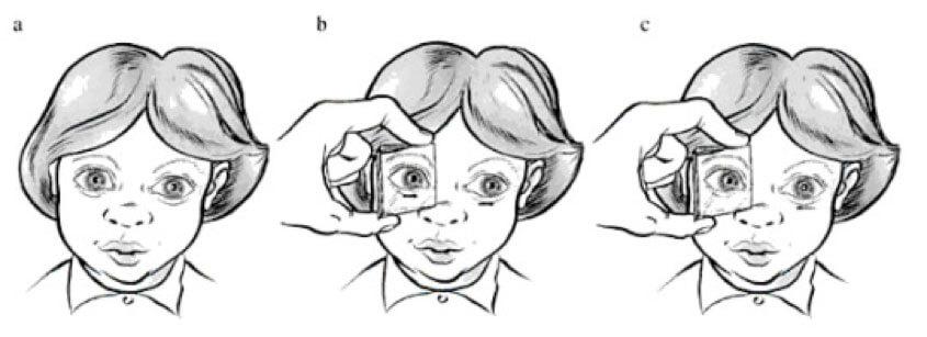 Figura 5. Test di Irvine: anteponendo un prisma a base esterna di 4 diottrie davanti ad un occhio, si osservano i movimenti dell'altro occhio. In un soggetto normale, questo (nella figura l'occhio sinistro) dapprima si muove verso sinistra (b), quindi ritorna verso il naso (c)