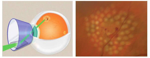 Trattamento laser argon rottura retina