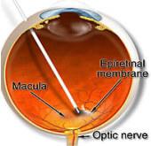Vitrectomia pucker maculare